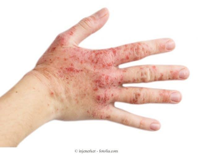 dermatite-de-contato-mano-640x501