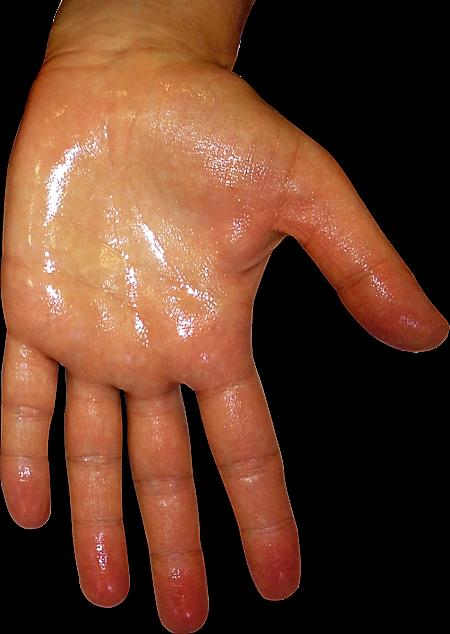 HIPERHIDROSIS-2