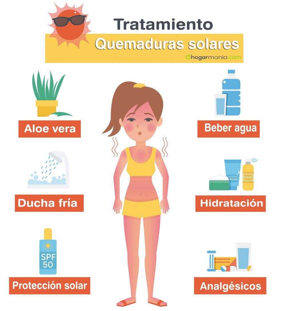 infografia-tratamiento-quemaduras-solares-XxXx80