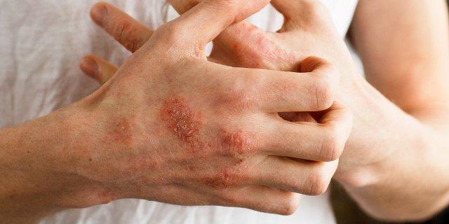 Las indicaciones para el test de pache son dermatitis en las que se sospecha una causa alérgica o agravamiento por algún alérgeno.